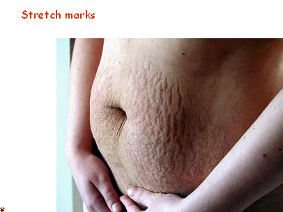 The Use of Topical Ointments to Avoid Stretch Marks During Pregnancy